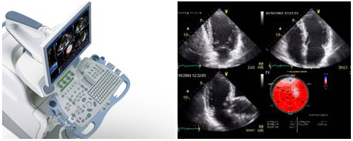 Two-Dimensional Echocardiography